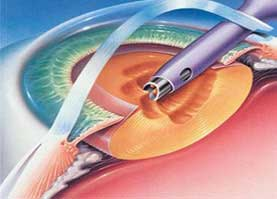 Cataract surgery