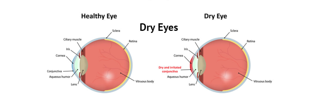 Treatment Of Dry Eyes – Follow Some Useful Home Remedies