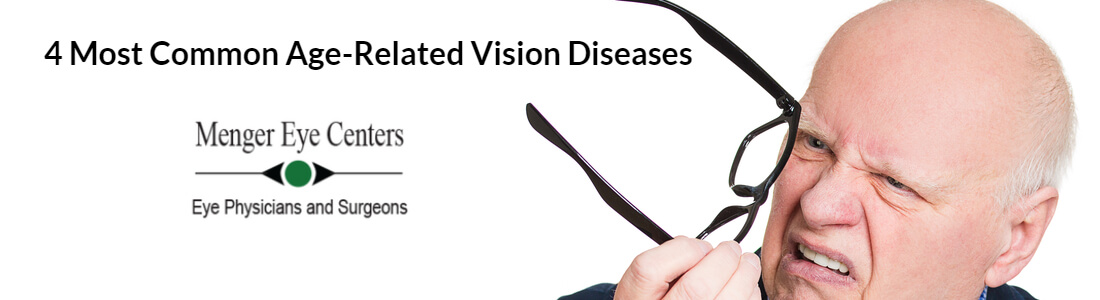 4 Most Common Age-Related Vision Diseases or Problems
