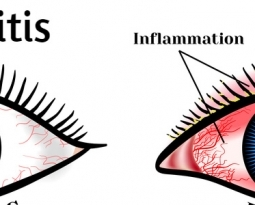 Blepharitis – How You Can Naturally Treat Eyelid Inflammation?
