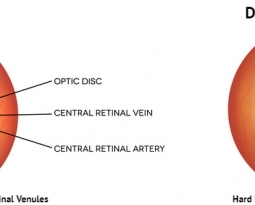 Protect Your Vision with Diabetic Retinopathy Treatment – A Complete Overview