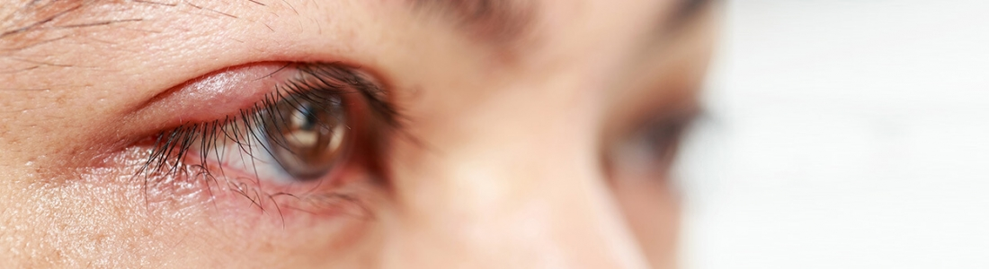 Blepharitis – Symptoms, Types, Causes & Treatment Of Eyelids Inflammation