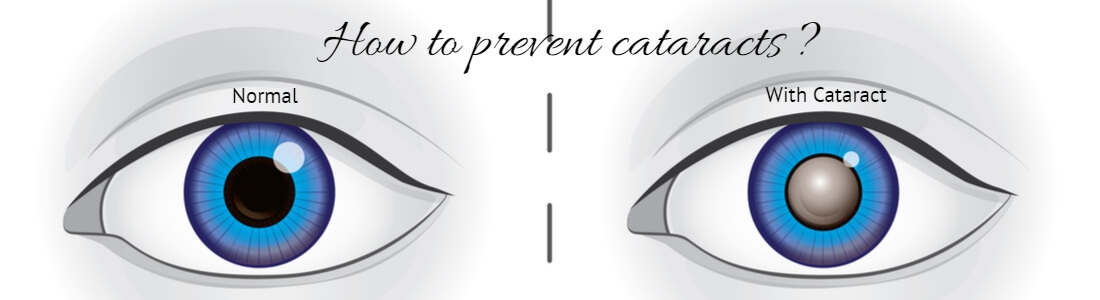Protect Your Vision & Prevent Cataracts With Dietary & Lifestyle Changes